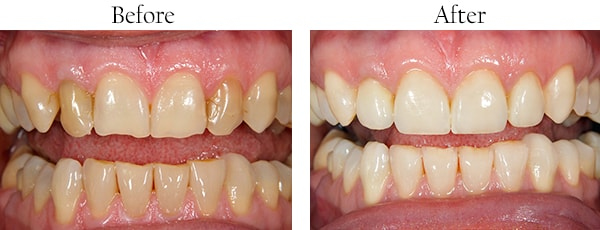 Fulton Before and After Dental Implants